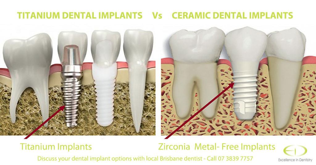 Difference in Titanium and Ceramic teeth implants